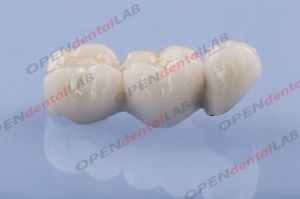 Most porcelanowy na metalu Crowns cad/cam