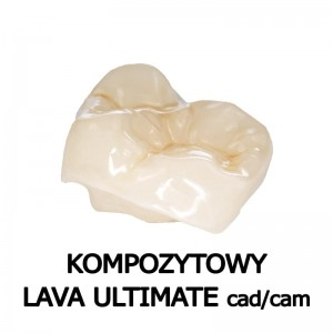 inlay/onlay kompozytowy Lava Ultimate cad/cam 01pkt